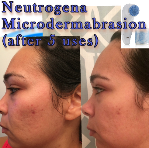 Neutrogena Microdermabrasion Review (After 5 uses)